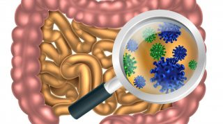 A new approach to IBS treatment: addressing small intestine bacterial overgrowth (SIBO)